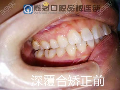 北京牙齿矫正真实经历分享