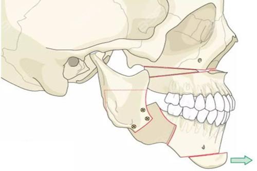 广州正颌手术医生名单