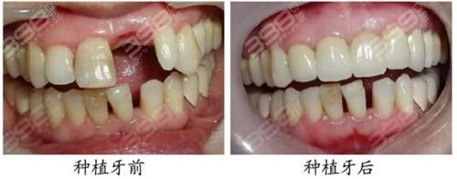 种植牙前后对比图