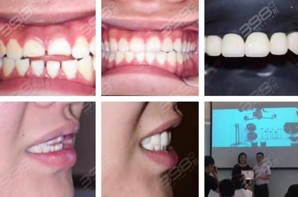 合肥可以做牙瓷贴面的医院:天鹅湖口腔医院帮他恢复健康大白牙