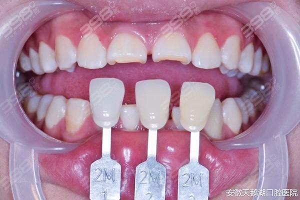 合肥牙齿贴面经历