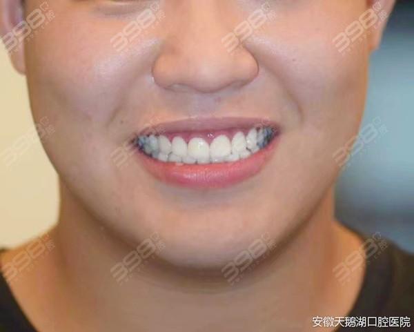 安徽天鹅湖口腔医院牙齿贴面真人分享