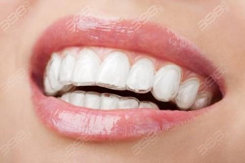 成都团圆口腔牙齿矫正价格
