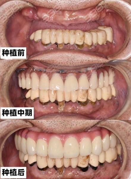 成都团圆口腔种植牙多少钱