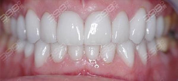 烤瓷牙修复