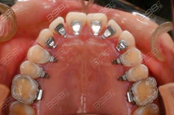 隐形牙套可以改善嘴凸吧?