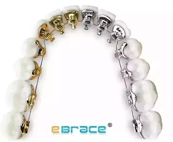 ebrace易美舌侧矫正费用大概是多少?隐形牙套可以改善嘴凸吧?