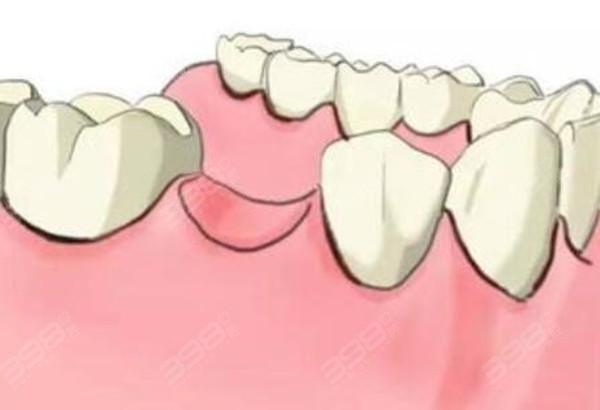 掉了十年的牙能种植吗