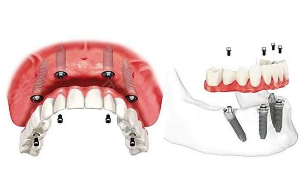 北京骨量不足全口种植牙大概要多少钱