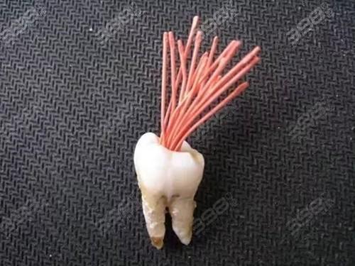 茂名根管治疗多少钱一颗牙?