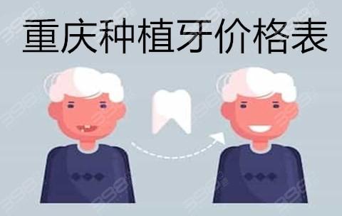 重庆全口种植牙多少钱