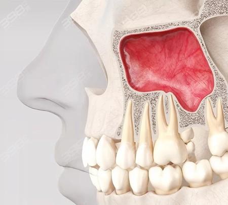 牙槽骨萎缩手术
