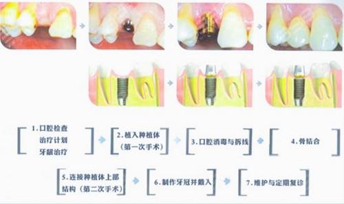 缺牙三十年还可以种牙吗?房山区瑞川口腔牙科给你准确答案