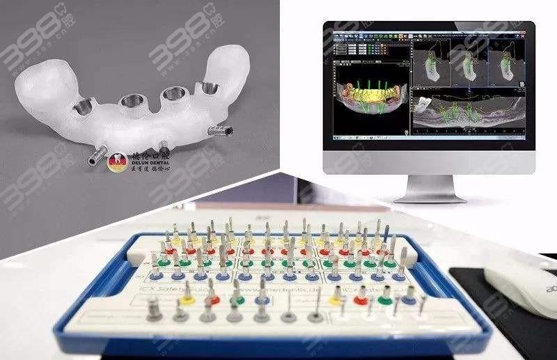 数字导板种植牙技术