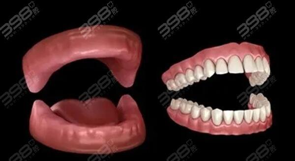 全口活动义齿修复