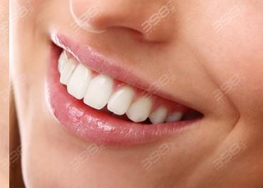 国产全瓷牙品牌有哪些