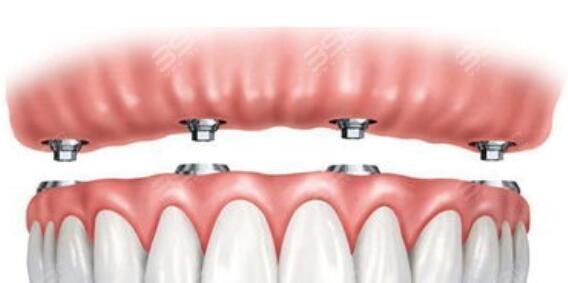 all-on-4全口种植牙