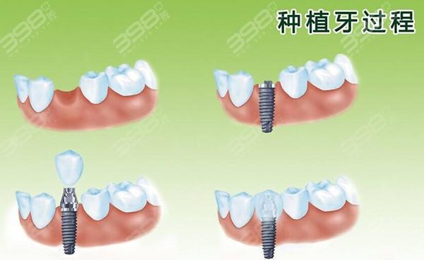 韩国登腾种植牙价格
