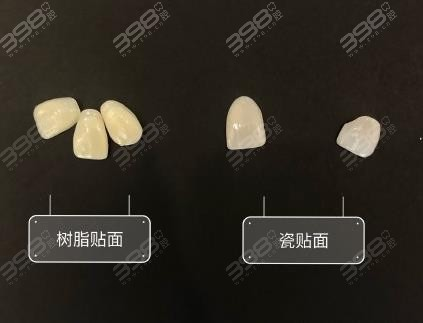 牙齿贴面用树脂好还是全瓷贴面好