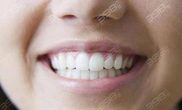 整整齐齐的牙齿