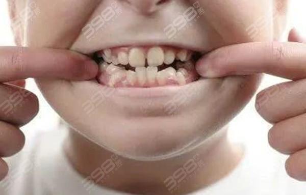 青少年牙齿不齐