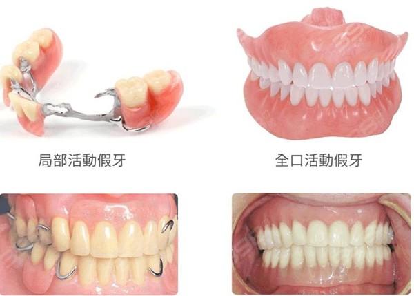 活动假牙和固定假牙哪个好?从假牙种类、材质及价格全面分析